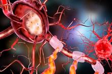 人体神经细胞图片